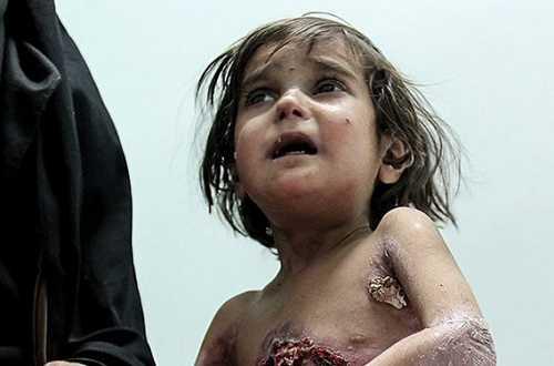بیماری های عجیب و وحشتناک در جنوب کرمان + عکس