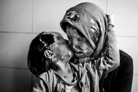 (+18) عکس هایی که یک دنیا درد دارند