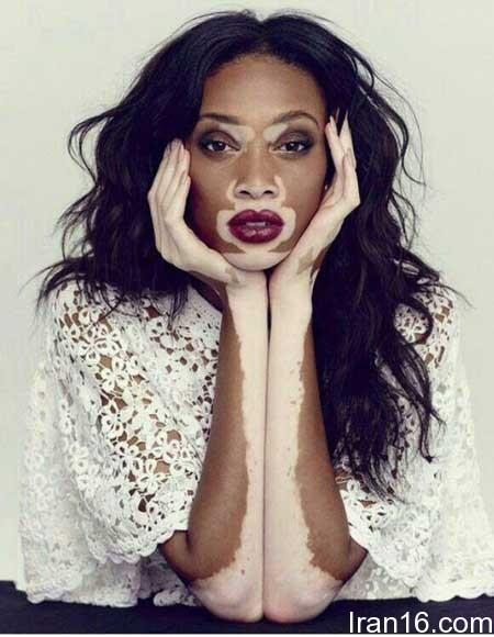 پیسی پوست، عامل شهرت خانم مدل +عکس