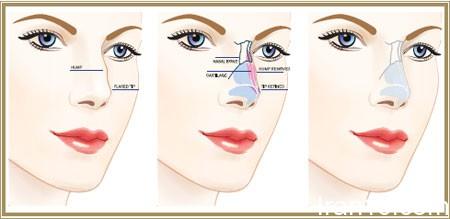 رینوپلاستی چیست, سن عمل جراحی بینی