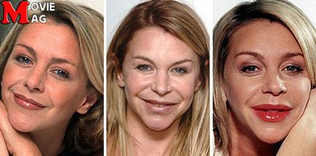 نابود شدن چهره بازیگران با جراحی پلاستیک!