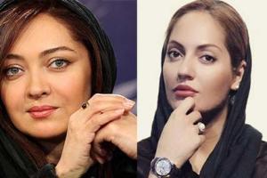 بازیگران زنی که تزریق ژل به لب و بوتاکس کرده اند: از مهناز افشار تا نیکی کریمی