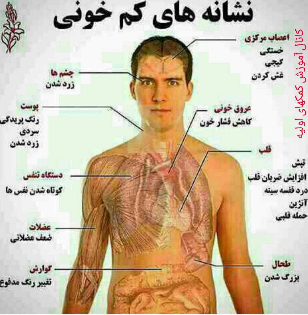 نشانه های کم خونی (عکس)