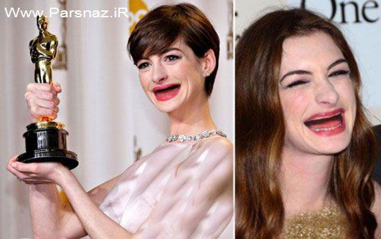 عکس های لورفته خنده دار زنان زیبای هالیوود بدون دندان