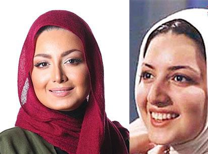 بازیگران ایرانی، قبل از عمل بعد از عمل زیبایی