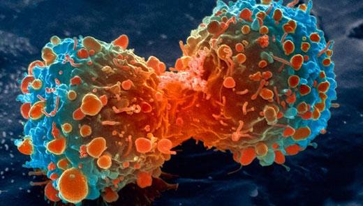 علایم هشدار دهنده سرطان که جدی نمی گیریم