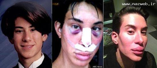 جوان زشتی که رکورد جراحی زیبایی را شکست! عکس