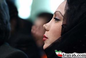 داستان لورفته بهنوش بختیاری و جراحی بینیاش + عکس