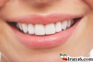 دندان هایتان را تا عید سفیدتر کنید !