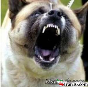 حمله سگ به انسان , سگ , حمله سگ , دریدن صورت