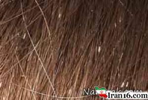 شپش موی سر و درمان سریع آن