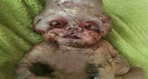 نوزاد با چهره عجیب , نوزاد , نوزاد عجیب الخلقه , نوزاد عجیب الخلقه در مازندران