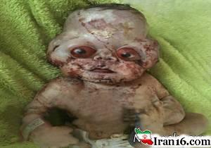 تولد نوزاد عجیب با چشمانی قرمز در مازندران؟! + عکس