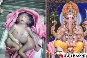 تولد نوزاد عجیب الخلقه با 4 پا در هند + تصاویر