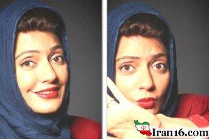 چهره زخمی و خونین مهناز افشار !! عکس
