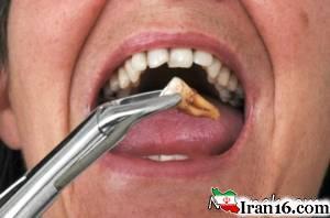 زندانی شدن مرد قمی بخاطر کشیدن دندان دوستش! کشیدن دندان ، دندان