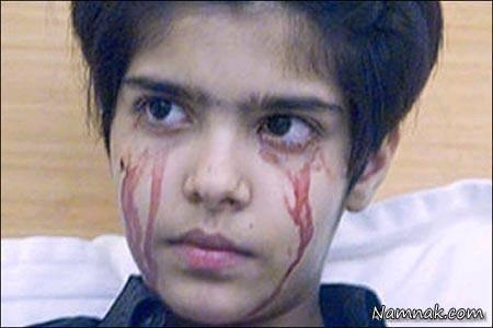 دختری که روزی 50 بار خون گریه می کند! + تصاویر