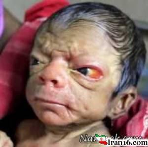 تولد نوزاد 80 ساله با چشمان زرد + تصاویر