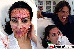 روش های عجیب جوانسازی پوست که افراد مشهور استفاده می کنند