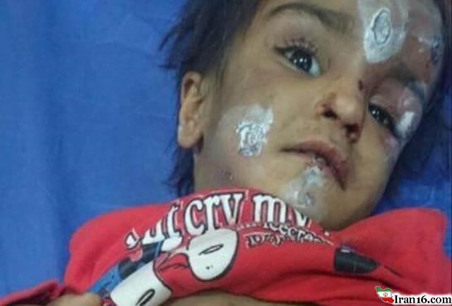 ماجرای شکنجه ستایش 3 ساله در رفسنجان + عکس