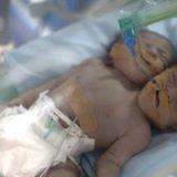 بدنیا آمدن نوزادی با 2 سر و یک بدن! عکس