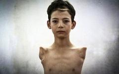 پسری که به جرم کمک به پدرش، دست هایش قطع شد