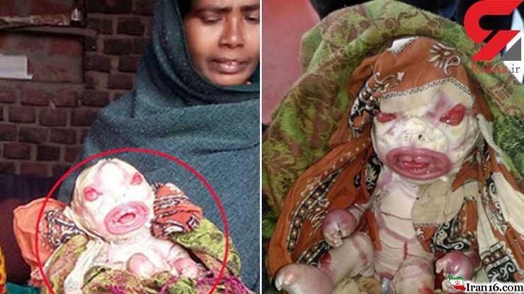 چرا این نوزاد را نفرینشده میدانند؟ +عکس(۱۶+)
