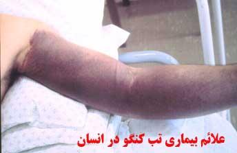 بیماری تب کریمه کنگو