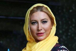 صورت خفن فریبا نادری قبل و بعد جراحی زیبایی بینی!! عکس