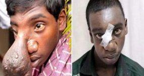 پسری با بینی عجیبی به شکل بیضه (تصاویر)