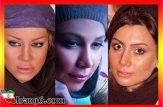 عکس های لورفته بازیگران زن ایرانی قبل عمل زیبایی