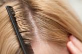 سریع ترین روش درمان شپش موی سر
