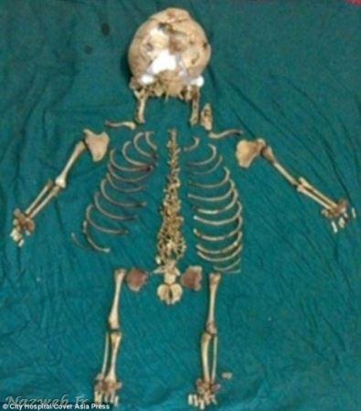 جنین 38 ساله در شکم این زن ! + عکس