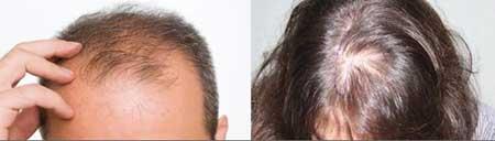 ریزش مو, ریزش موی زنانه, ریزش موی مردانه