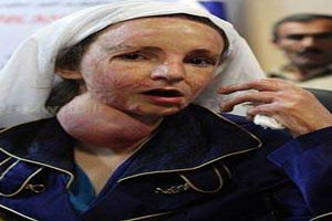 جدیدترین عکس های دختران سوخته ی شین آباد