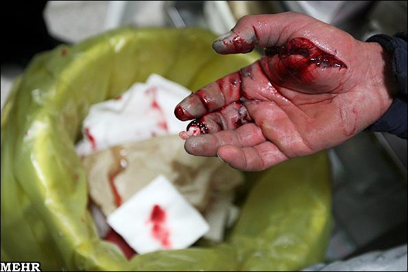 عکس های سوختگی ها و مصدومیت های چهارشنبه سوری 93